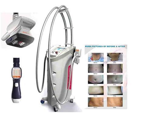 velashape cellulite machine for5 sale picture 2