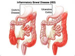 Inflamed colon picture 10