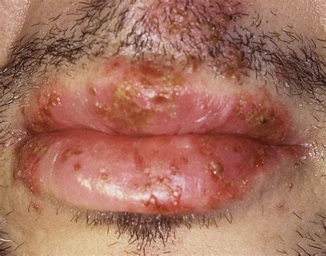 herpes type 2 oral lesion picture 9