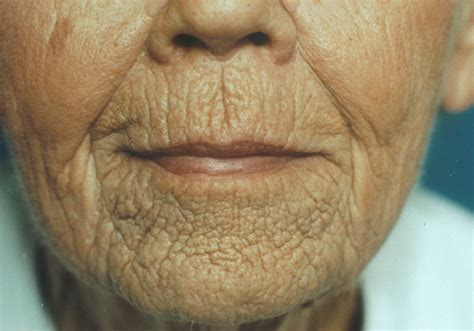 aging treatments picture 10