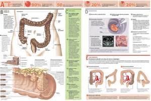 Whats in your colon picture 1