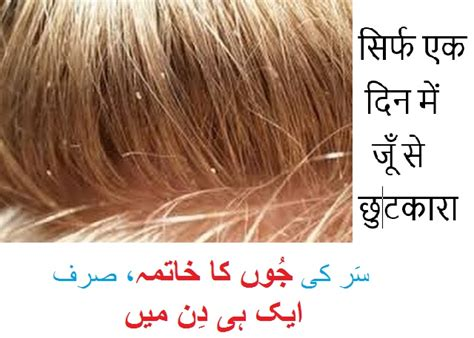 anti lice treatment in urdu picture 1