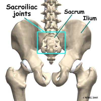 sacroiliac joint arthritis picture 14