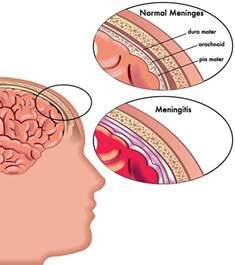 bacterial meningitis hole in brain picture 7