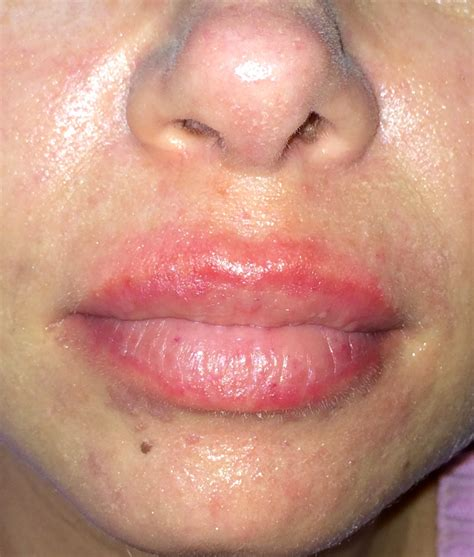 allergic reaction on lips pictures picture 12