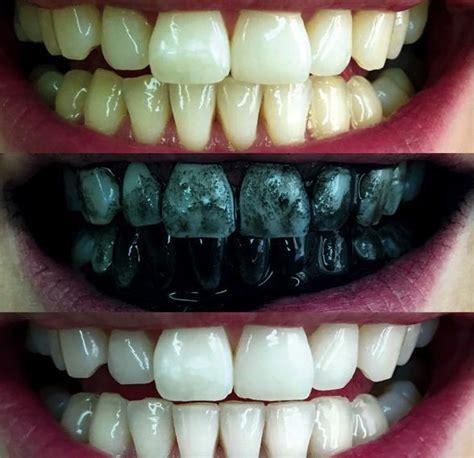 calcium teeth white picture 2