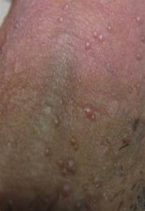 pictures of sores on penile head picture 3