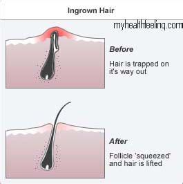 correlation between eyebrows and pubic hair picture 7