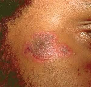 lupus discoid rash picture 6