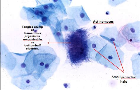 yeast infections with abnormal pap smear picture 7