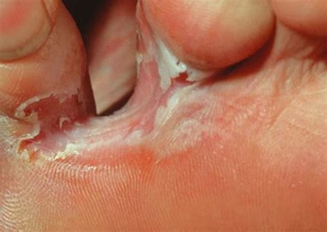 white peeled skin between toes picture 1