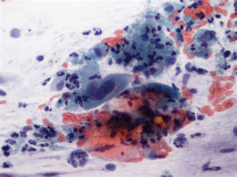 ascus yeast infection picture 9
