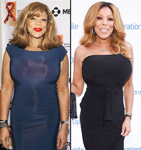 wendy williams weight loss picture 3