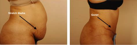 cost to remove stretch mark picture 6