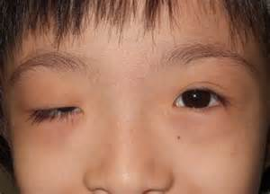 thyroid disorders children picture 6