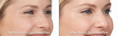 aging botox treatment picture 6