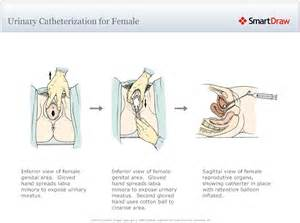 medical insertion in female uretra picture 14