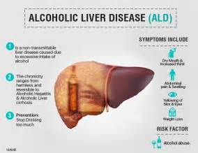 alcohol liver disease picture 2