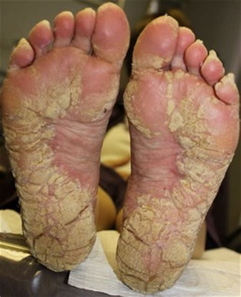 treatment of plantar warts picture 10