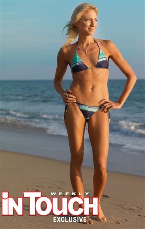 cellulite loss with weight loss picture 3