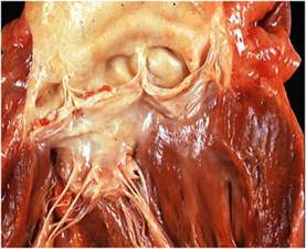 bacterial endocarditis picture 5