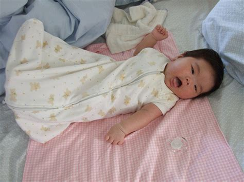 skin discoloration in infant picture 13