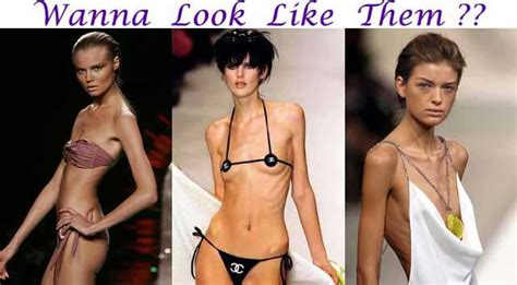 weight loss of an anorexic picture 1