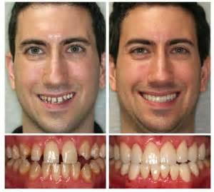 procedure straightens h on ambush makeover picture 11