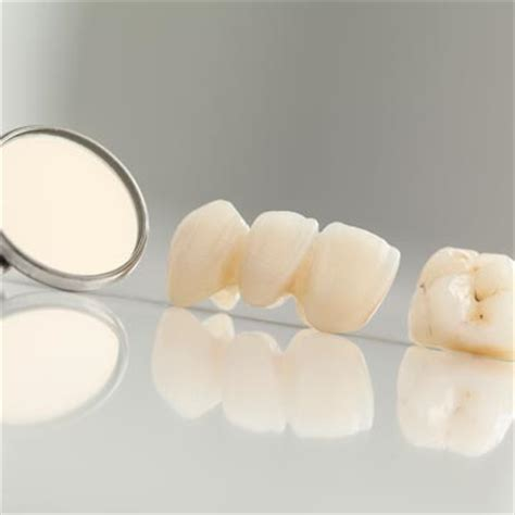 correcting crooked teeth picture 17