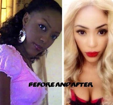 whitenicious skin cream cost picture 1