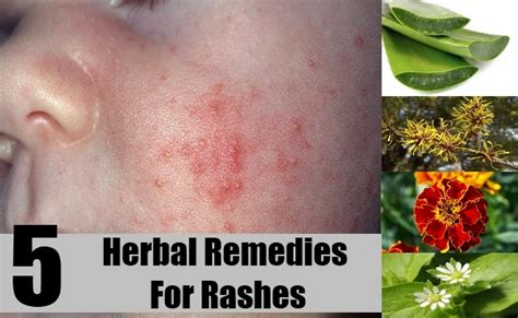 free natural cures for skin rashes picture 3