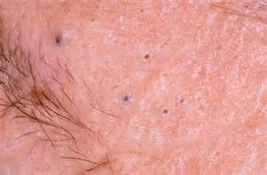 dark pimples on the skin picture 6