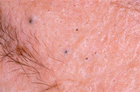 scrotum acne picture 11