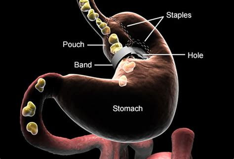 the stomach weight loss band picture 9