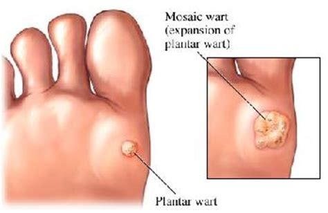 is it possible to get a wart on picture 6