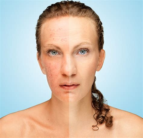 anti aging myths research picture 15