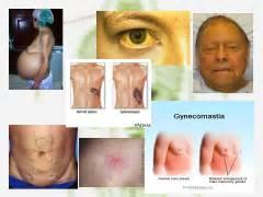 chronic liver disease - jaundice picture 6