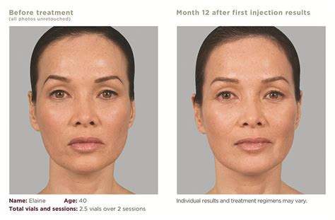 is sculptra good for acne scaring picture 10