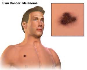 melanosis of the skin picture 17