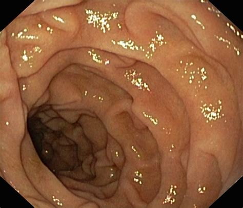 intestinal flushing inside stomach picture 6