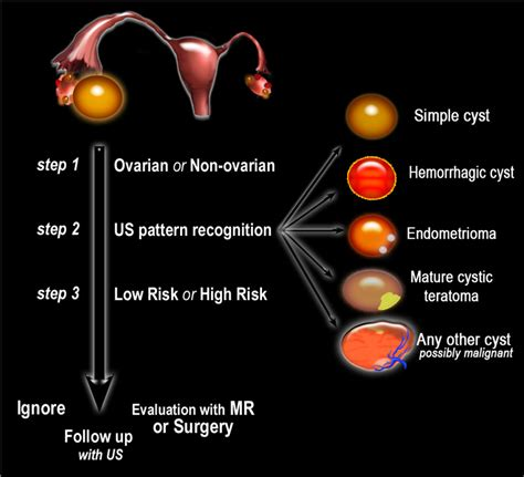 high testosterone ovarian cyst picture 11