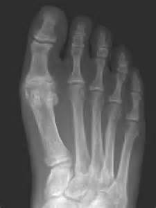 virginia bunions and great toe arthritis/hallux limitus joint picture 3