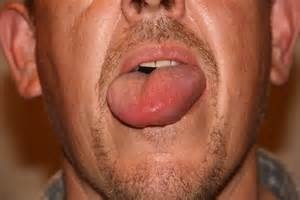 what causes for lips to rash and swell picture 3
