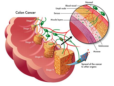 intestinal cancer stage 4 picture 3