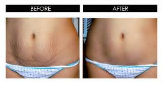 effect of serovital on stretch marks picture 14