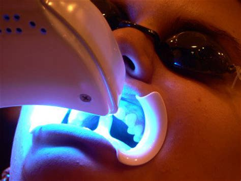 tooth whitening san francisco picture 3