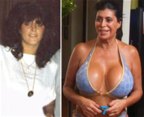 celebrities that have had breast augmentation jobs picture 6