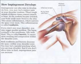 joint impingement syndrome shoulder diagnosis treatment picture 1