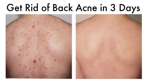 how to get rid of back acne picture 1