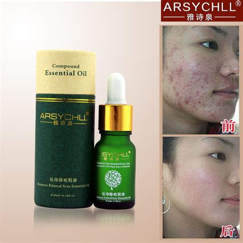 internal acne scar and stretch mark remover picture 6